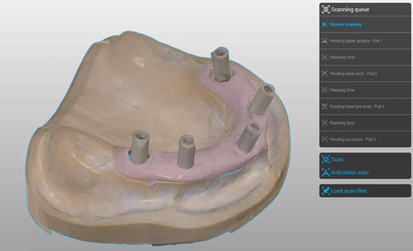 Implant Prosthetic